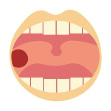 【入浴】 「口内炎」の入浴法 ~口内炎は疲労のサイン~